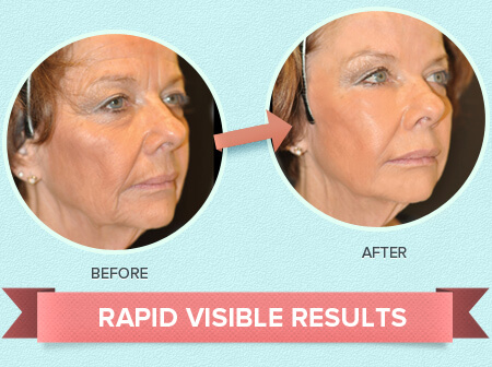 rapid-visible-results